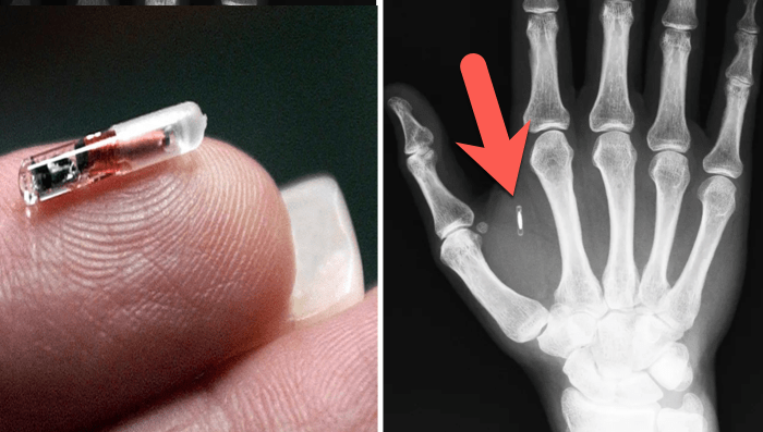 Thousands In Sweden Have Implanted Microchips Under Their Skin