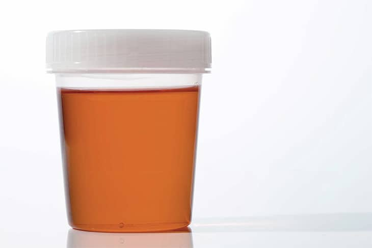 pancreatic cancer dark urine