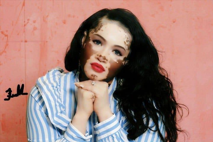 Model With Vitiligo Shares Promotion Of Self Love Through Her Newly Published Novel True Activist