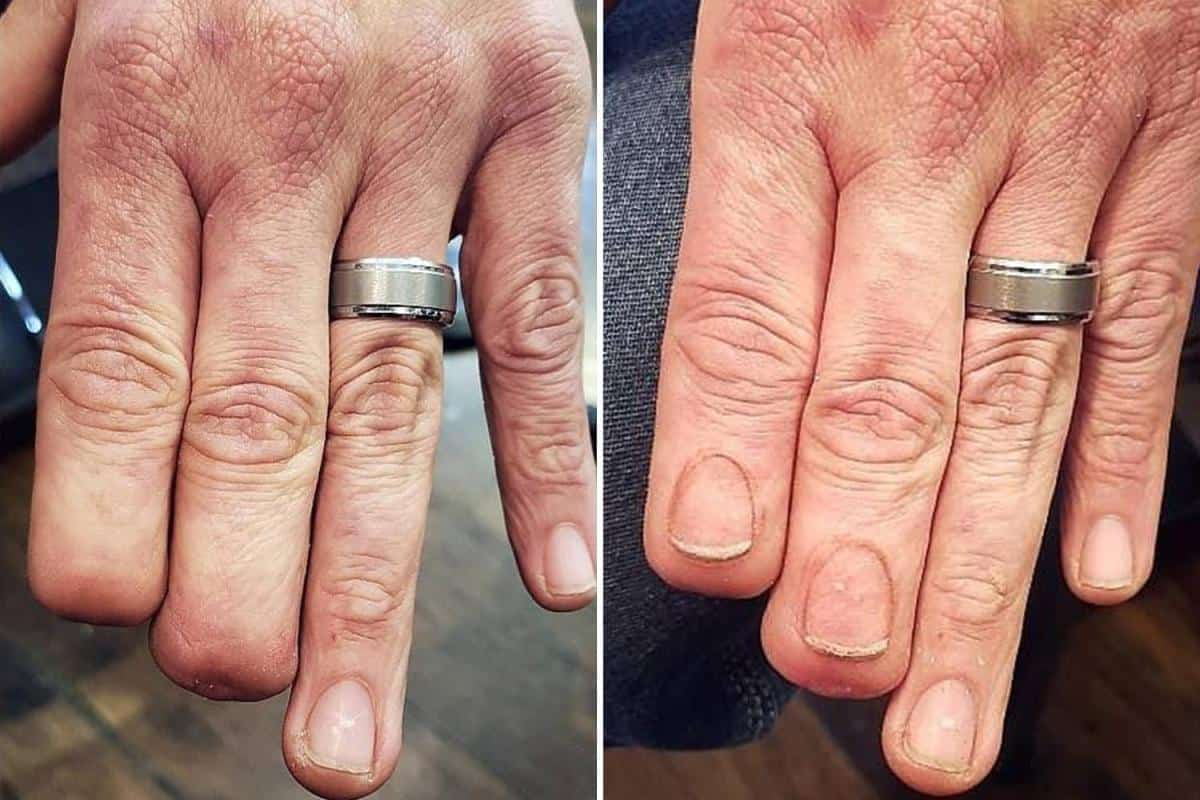 Tattoo Artist Designs Hyper-Realistic Fingernails On An Amputee And You Wouldn't Even Notice That It Was A Work Of Art!