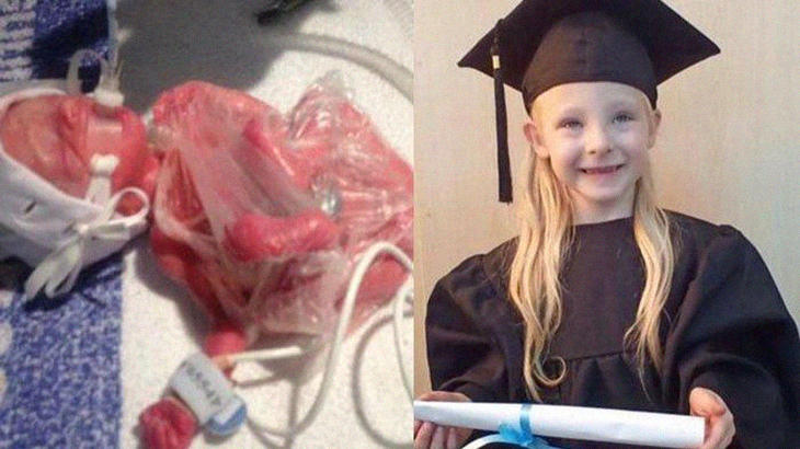 Girl Who Weighed The Same As Half A Bag Of Sugar At Birth About To Start Primary School
